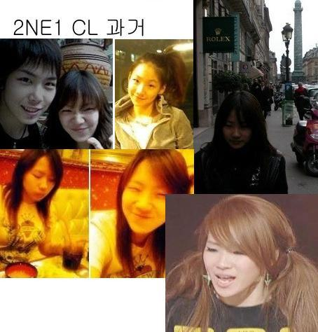 Park Bom Before Surgery http://asianfamily.wordpress.com/2010/03/09/pic-before-and-after-2ne1/